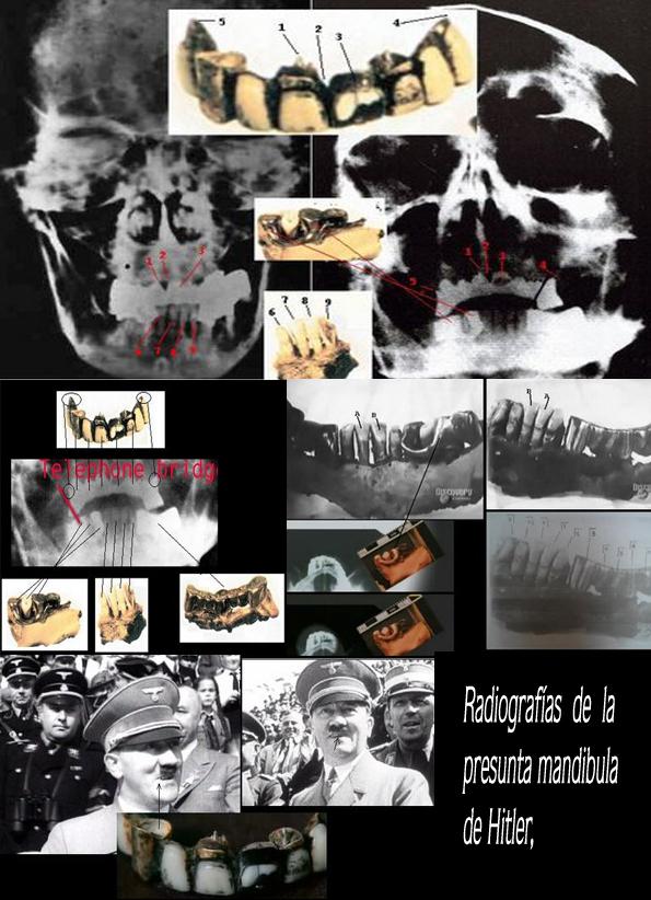 Radiografias Hitler